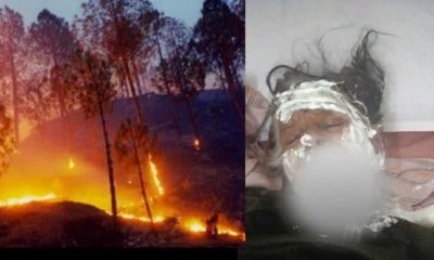 Uttarakhand: Gomti Devi of almora bhikyashen scorched badly due to forest fire